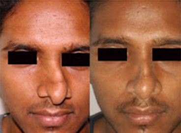 Rhinoplasty India