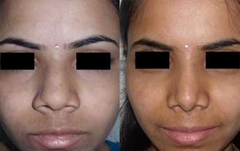 Rhinoplasty (Nose Job) in Hyderabad & India|Nosecontour.com