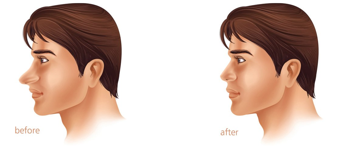 Rhinoplasty Surgery Cost in India